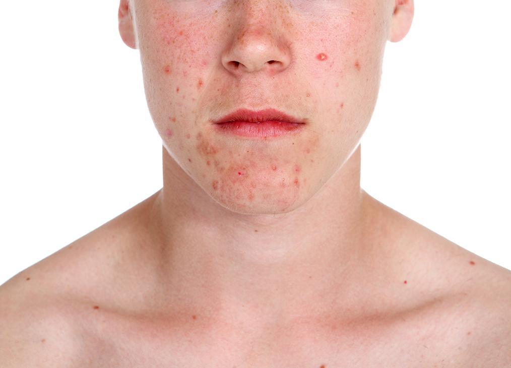 : darm-akne-zusammenhang, darmflora-und-hautkrankheiten