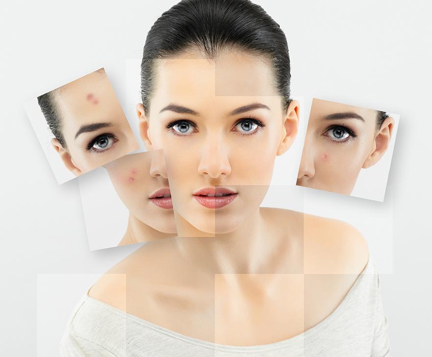 wellness hautpflege bremen -  Hautzustand vs. Hauttyp