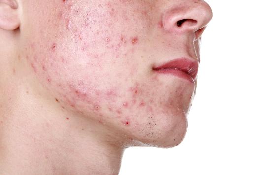 Ernährung und Hautunreinheiten, gesunde Ernährung gegen Hautalterung, Ernährungsumstellung für bessere Haut